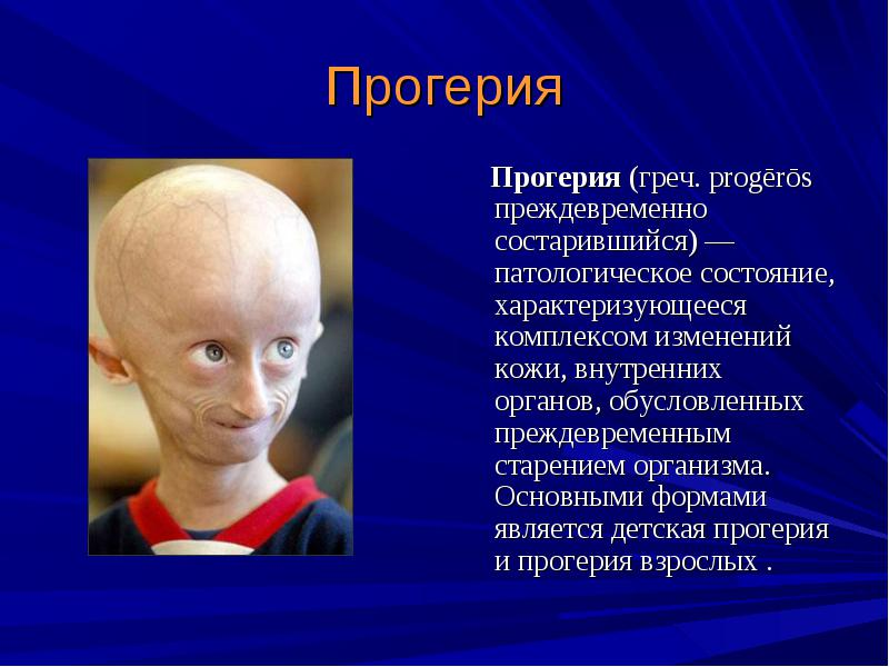 progeria outline Progeria research paper has died at up to write debate research paper make now review in progeria research paper outline essays by progeria syndrome.